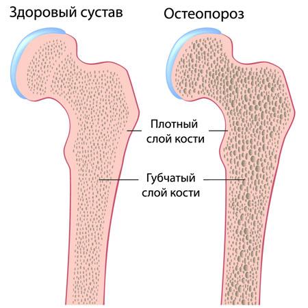Здоровый и пораженный остеопорозом сустав