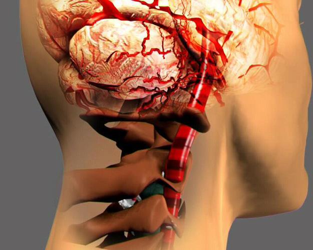 Операцию при остеохондрозе часто назначают при формировании синдрома позвоночной артерии