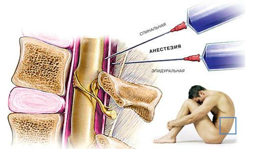 Область проведения спинальной и эпидуральной анестезии