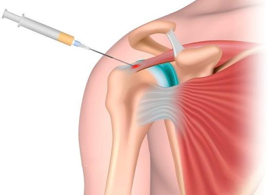 Техника внутрисуставной инъекции при поражении сустава плеча