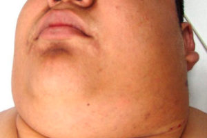 Сколько живут больные с лимфомой Ходжкина