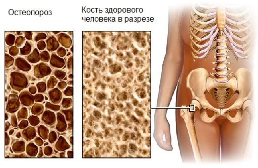 Здоровые и пораженные остеопорозом кости