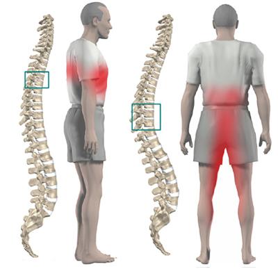 Локализация боли при грыже грудного отдела