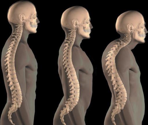 Стадии развития кифоза позвоночника