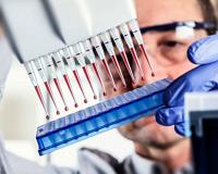 Лабораторная диагностика гепатита B