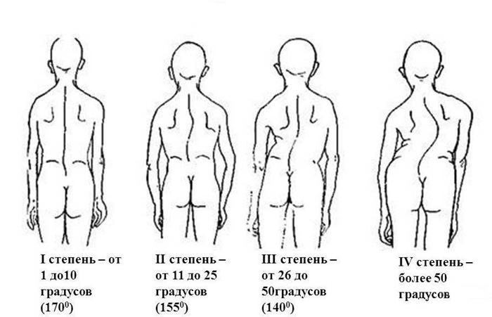 Степени сколиотической болезни позвоночника