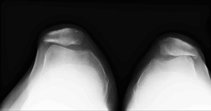 Рентгенографические признаки пателлофеморального артроза
