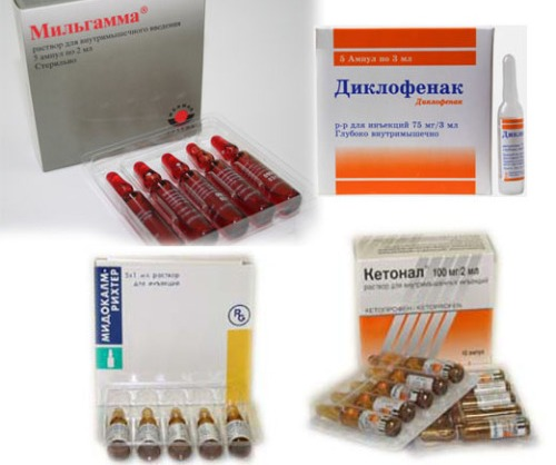 Наиболее часто использующиеся средства при остеохондрозе