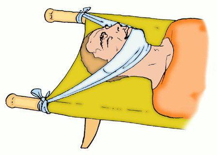 Транспортировка больного с переломом шеи