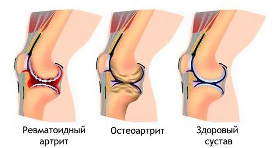 АЦЦП позволяет выявить остеоартрит