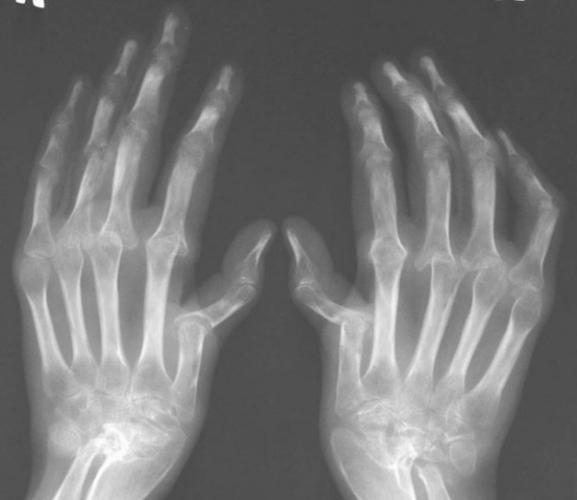 Изменения по мере прогрессирования болезни можно наблюдать на рентгенографических снимках