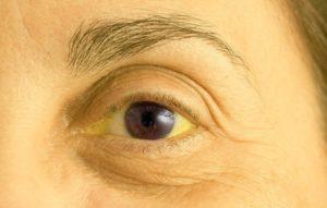 Желтушность глазных яблок