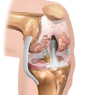 Пораженное остеохондрозом колено