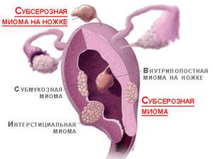 Лечение и последствия субсерозной лейомиомы матки