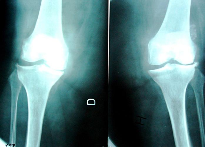 Артроз на снимке рентгенографии