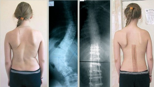 Результаты оперативного лечения сколиоза