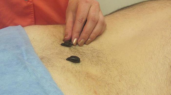 Гирудотерапия при поясничном остеохондрозе