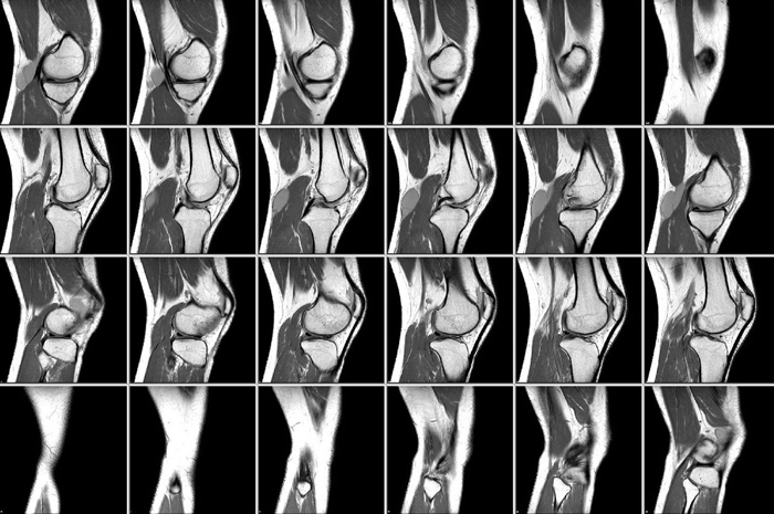Визуализация локтевого сустава на МРТ