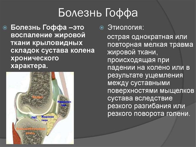 Общие сведения о болезни Гоффа