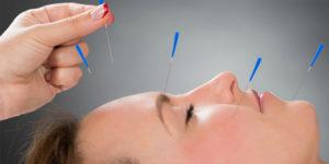 Как проводится ЛФК при неврите лицевого нерва