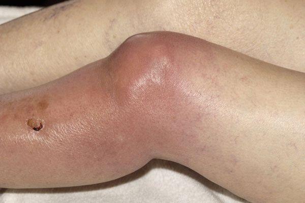 Сильное воспаление на фоне гнойного поражения коленного сустава