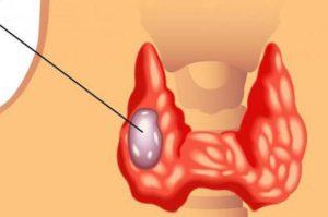 Какой онкомаркер показывает рак щитовидной железы