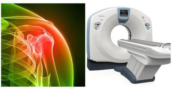 Аппарат для проведения КТ плечевого сустава