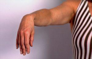 Как и чем лечится неврит лучевого нерва