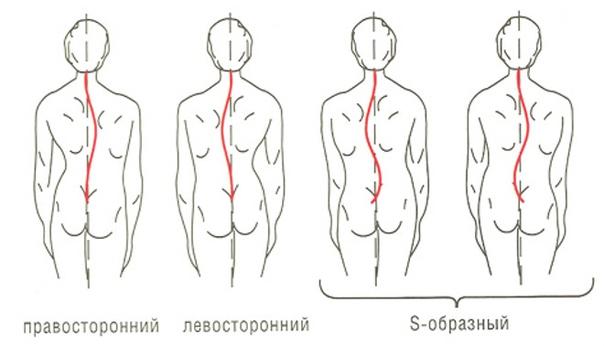 Виды сколиотической болезни позвоночника