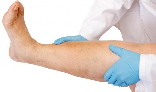 Физиотерапия и массаж эффективны только при умеренных (небольших) отечностях