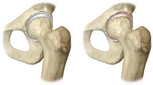 Нормальный и пораженный остеопорозом тазобедренный сустав