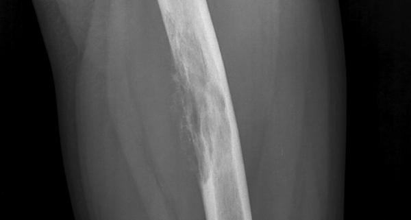 Острый остеомиелит на рентгеновском снимке