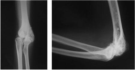 Результаты рентгенографии при артрозе локтя (видны дегенеративные и дистрофические изменения)