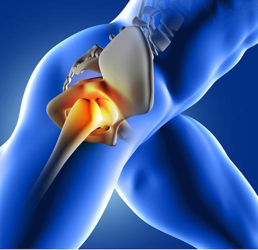 В теории лечение стволовыми клетками способно убрать даже сильные боли от артроза