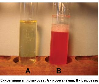Нормальная и содержащая кровь синовиальная жидкость