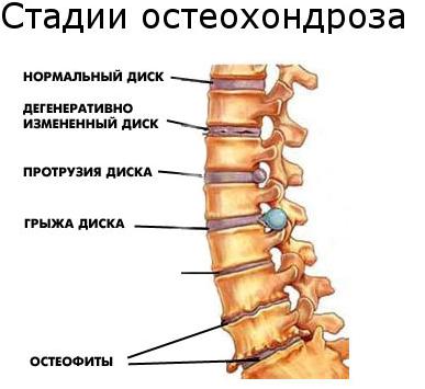 Условные стадии остеохондроза
