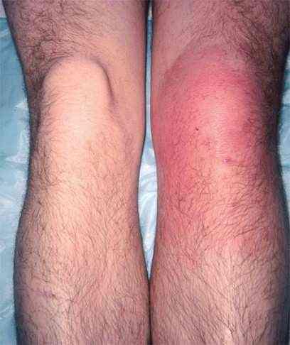 Покраснение кожных покровов и повышение температуры в них — типичные симптомы гнойного поражения сустава