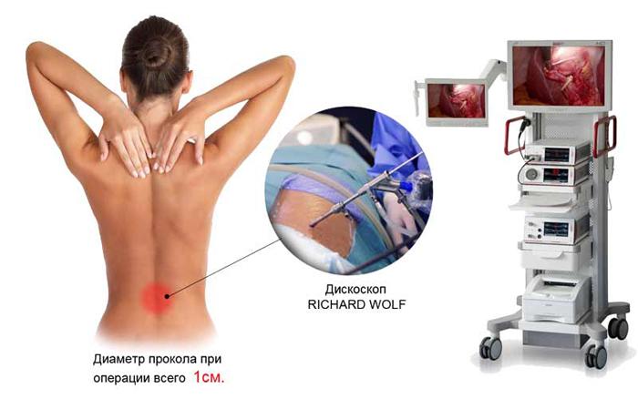 Эндоскопическая дискэктопия позвонка