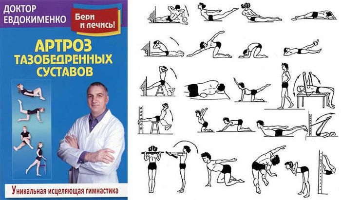 Доктор Евдокименко автор множества книг по лечению артрозов и артритов