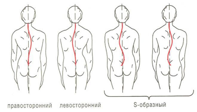 Формы грудопоясничного сколиоза