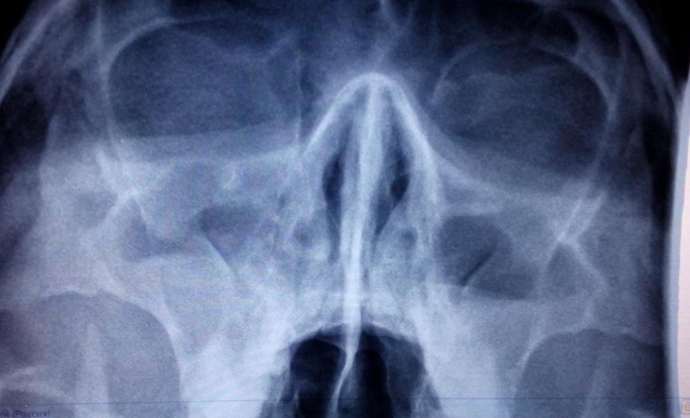 Рентген при гайморите