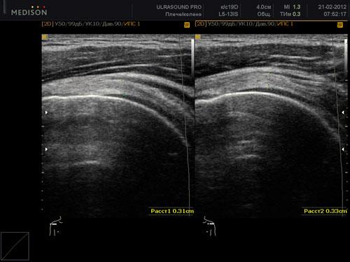 Визуализация плечевого сустава на УЗИ