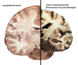 Основные признаки болезни Альцгеймера на ранней стадии