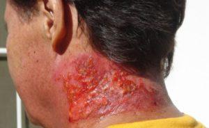 лечение ожогов после лучевой терапии