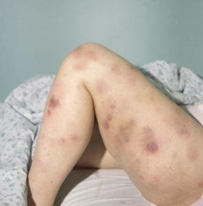 Диагностика и лечение острого лимфобластного лейкоза у взрослых