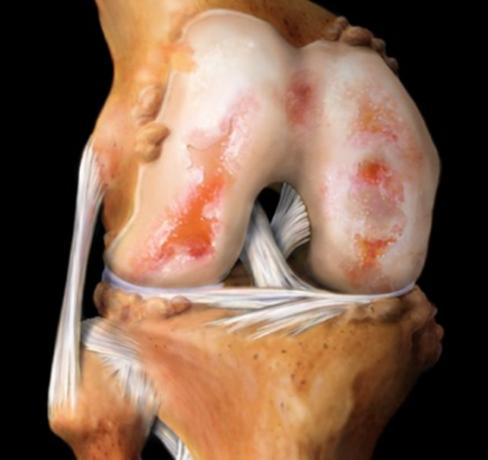 Билково лечение при артрит