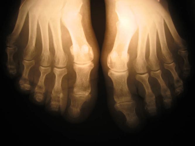 Визуализация остеопении ног