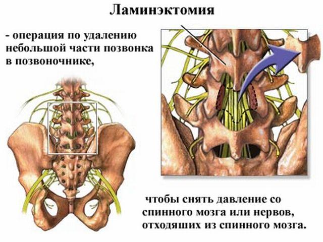 Общее описание ламинэктомии