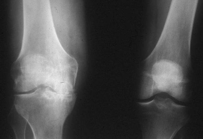 Пирофосфатная артропатия на рентгенографии