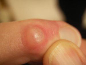 Почему появляется гигрома на пальце руки